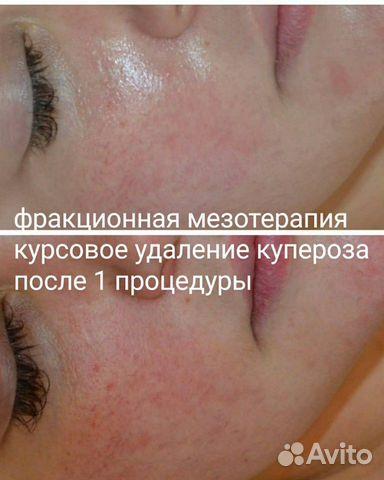 Косметолог 89333271997 купить 2